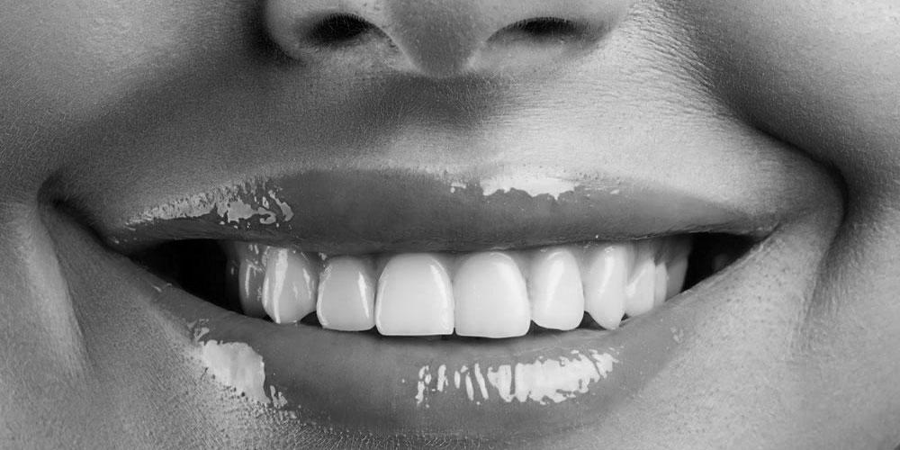 chirurgia-labbra